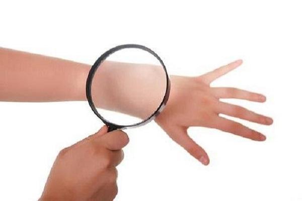 رابطه بین بیماری کووید 19 و بثورات پوستی